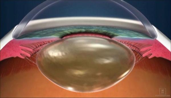 白内障の眼球水晶体