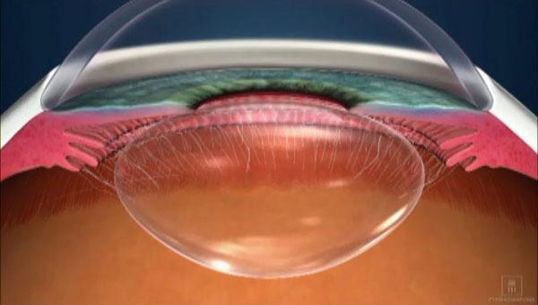 40~50才代で老眼となった眼球水晶体