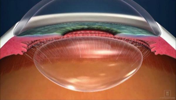 若い健康で正常な眼球水晶体