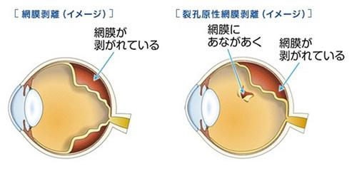 網膜剥離の原因