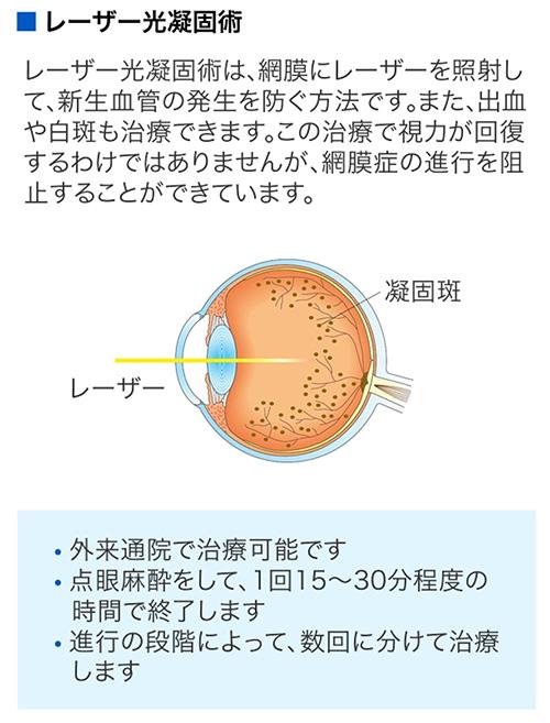 レーザーによる光凝固術